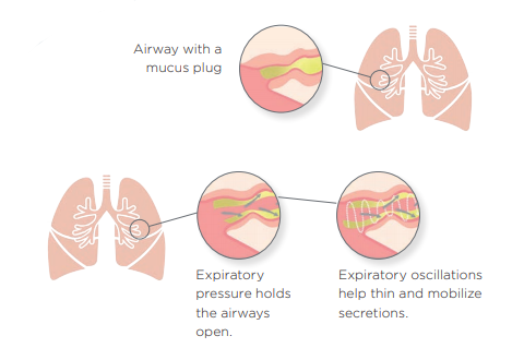 OPEP Dislodges Lung Mucus