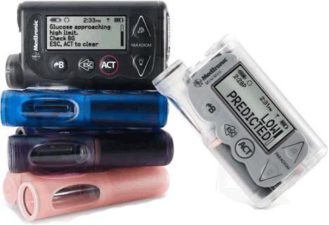 Diabetes Insulin Pumps
