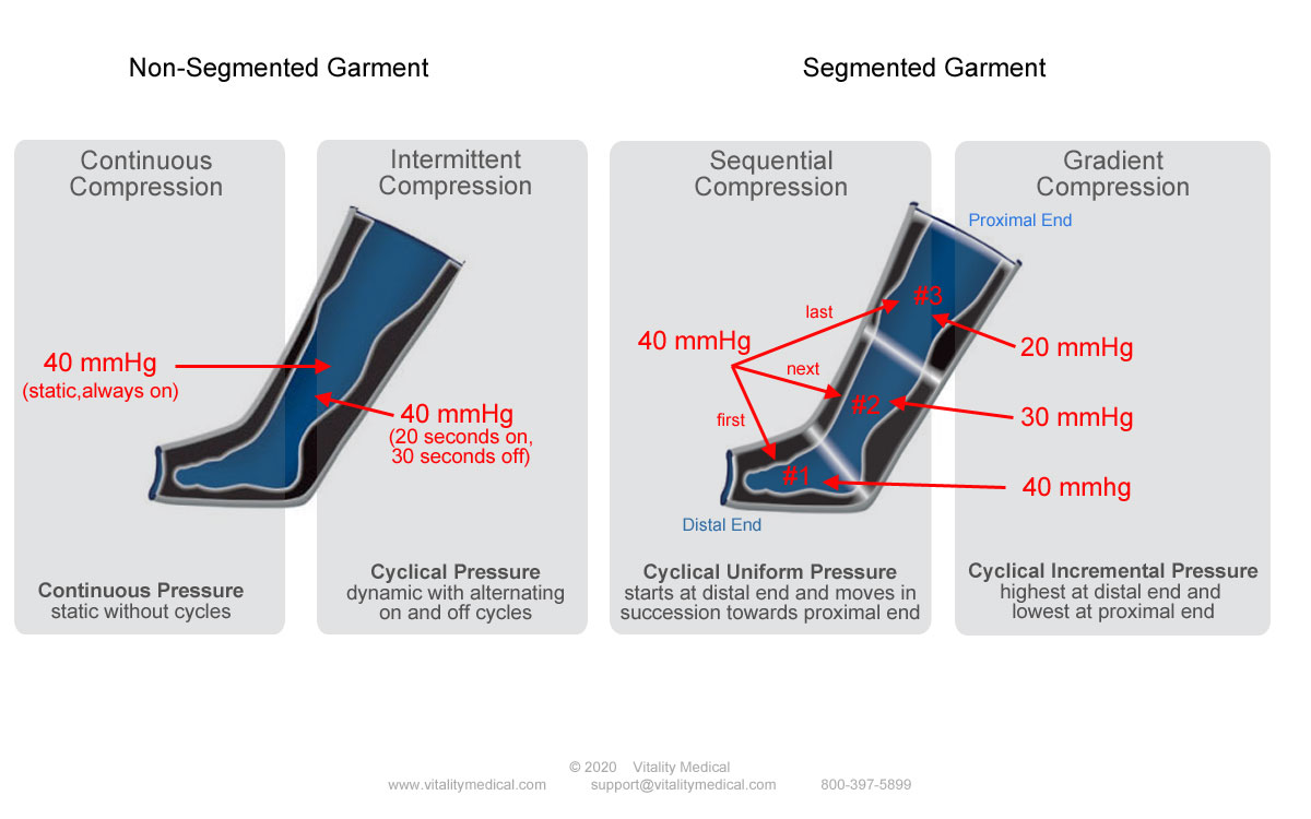 Compression Therapy Options - Continuous, Intermittent, Sequential, Gradient