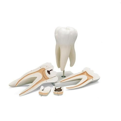 Giant Molar with Dental Cavities