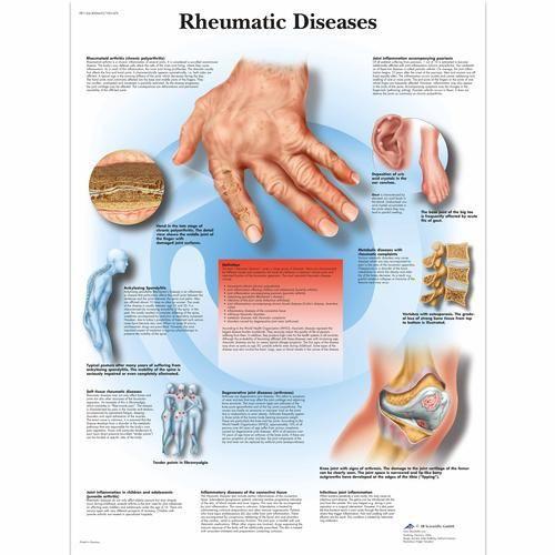 Rheumatic Diseases Chart