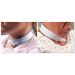 Bariatric Trach Holder