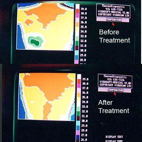 Thermotex Tts Platinum Infrared Therapy Tts Platinum