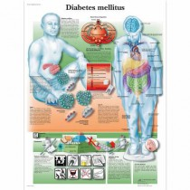 Diabetes Mellitus Chart