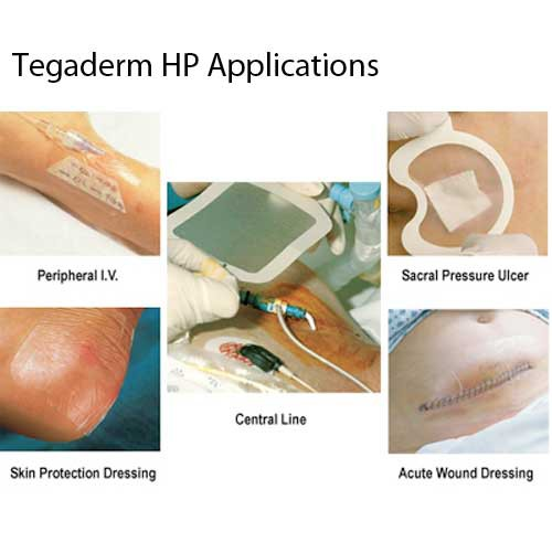 3m 9534hp Tegaderm Hp Transparent Dressing 2 3 8 X 2 3 4