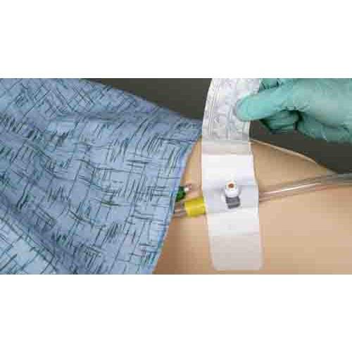 Foley Catheter Adhesive Securement Device