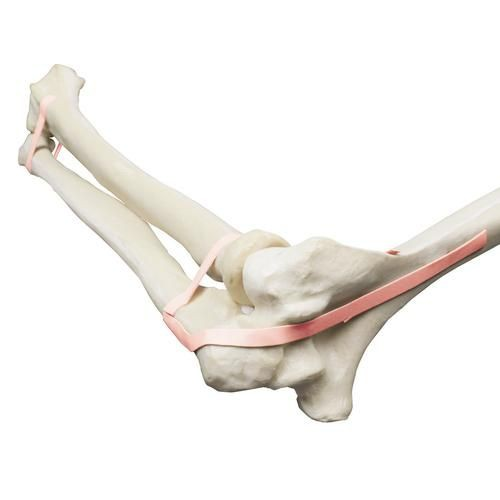 ORTHObones Premium Elbow, Ulna, Radius, Humerus, Latex Band