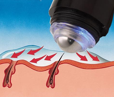 Electrolysis Hair Remover Buy Electrolysis Hair Remover