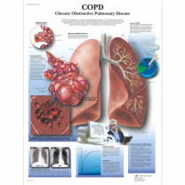 COPD Chart - Chronic Obstructive Pulmonary Disease