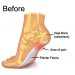 Before Plantar Fasciitis Foot Sleeves