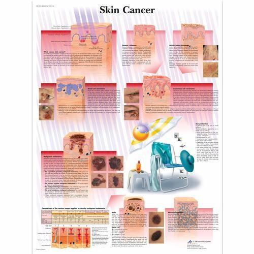 Skin Cancer Chart