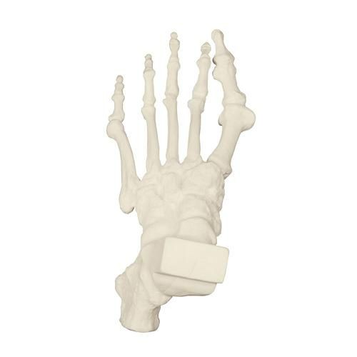 ORTHObones Premium Foot with Hammer Toes, Bunions, and Heel