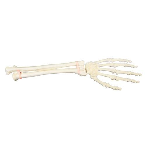 ORTHObones Premium Hand and Forearm, Left