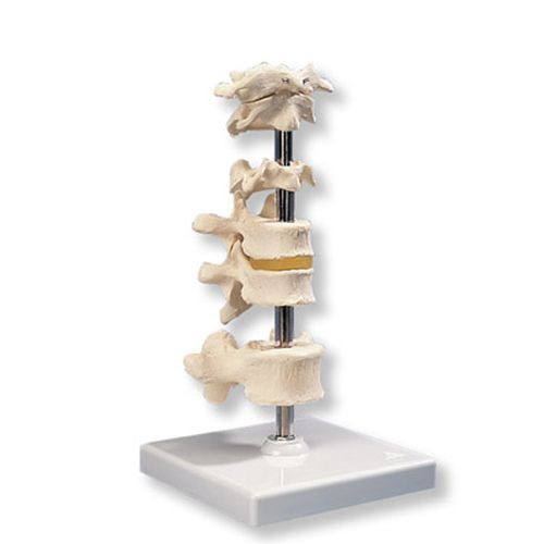 6 Mounted Vertebrae