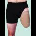 Juzo Dynamic Above the Knee Stump Shrinker with Silicone Border 30-40 mmHg