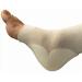 Mepilex Heel Dressing Application