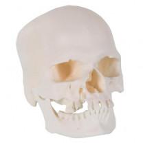 Microcephalic Human Skull Model