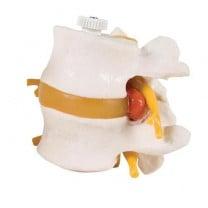 2 Lumbar Vertebrae with Prolapsed Disc, Flexibly Mounted
