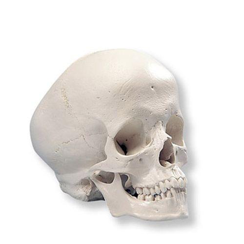 Hydrocephalic Human Skull Model