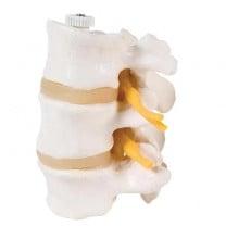 3 Lumbar Vertebrae, Flexibly Mounted