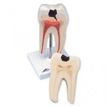 Lower Twin-Root Molar Showing Cavities Model