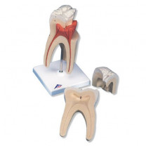 Upper Triple-Root Molar Model