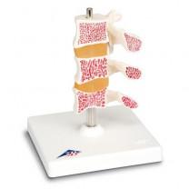 Deluxe Osteoporosis Model