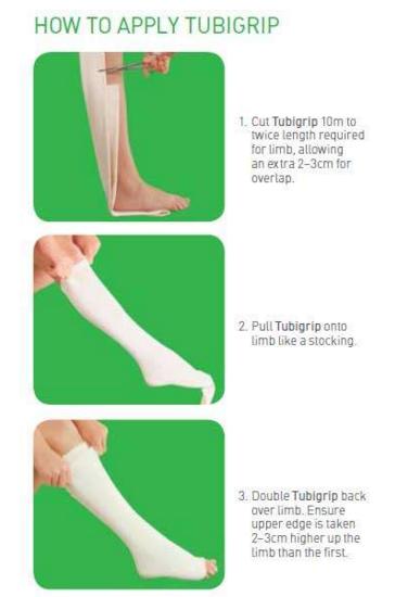 Tubigrip Elasticated Tubular Bandage Molnlycke