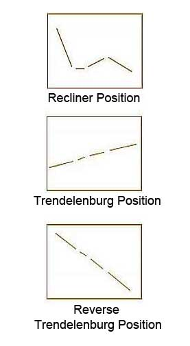 Full and Reverse Trendelenburg
