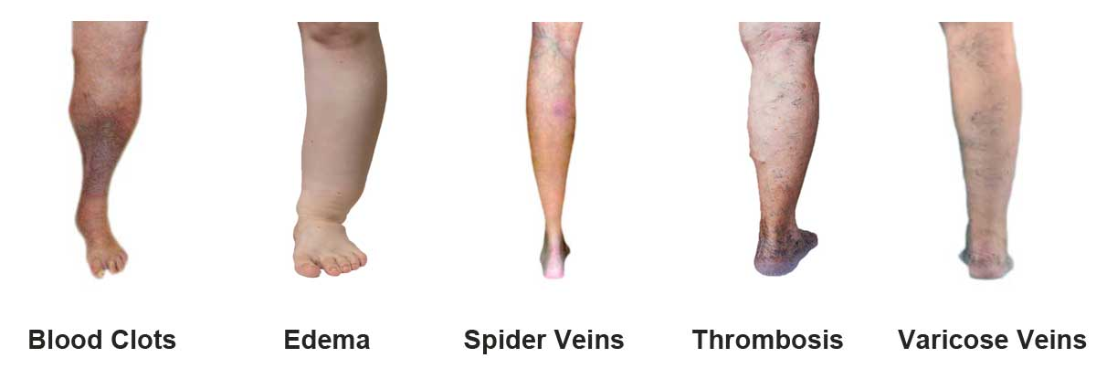 Venous Insufficiency Illnesses