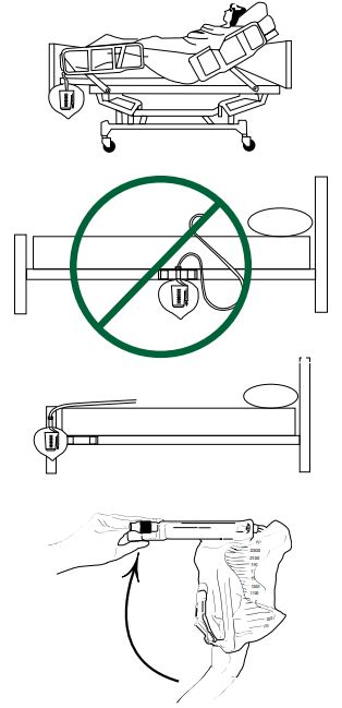 How to position a urine drain bag